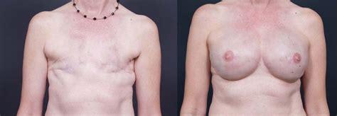 breast reconstruction dr talmor jpg 999x347